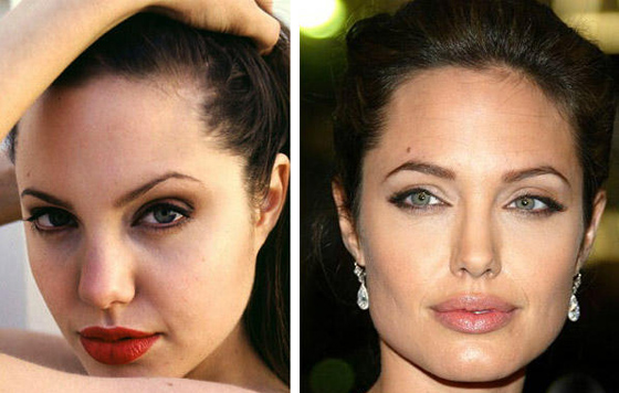 липосакция лица до и после