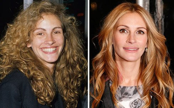 До и после операции: